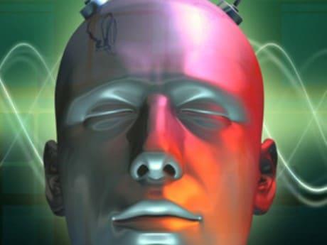 110-CMA-brain-460