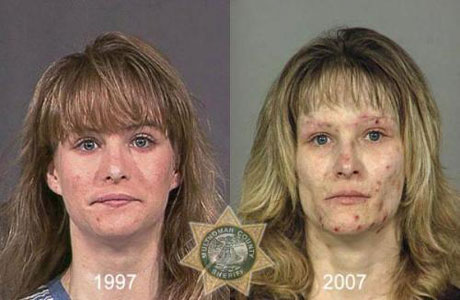 166-NA-crystalmeth-before-after-460
