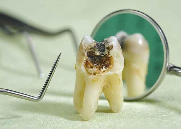 تاثیر اعتیاد به شیشه بر دندان