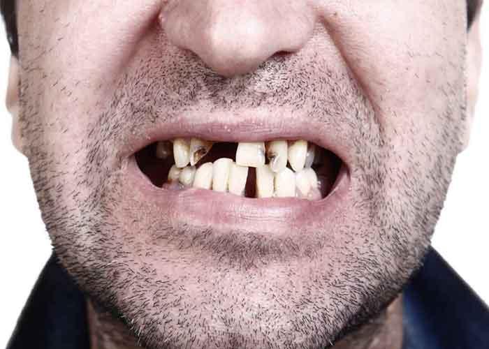 اثرات کوکائین بر دندان